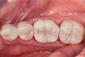 Same Day Crown and Composite Filling